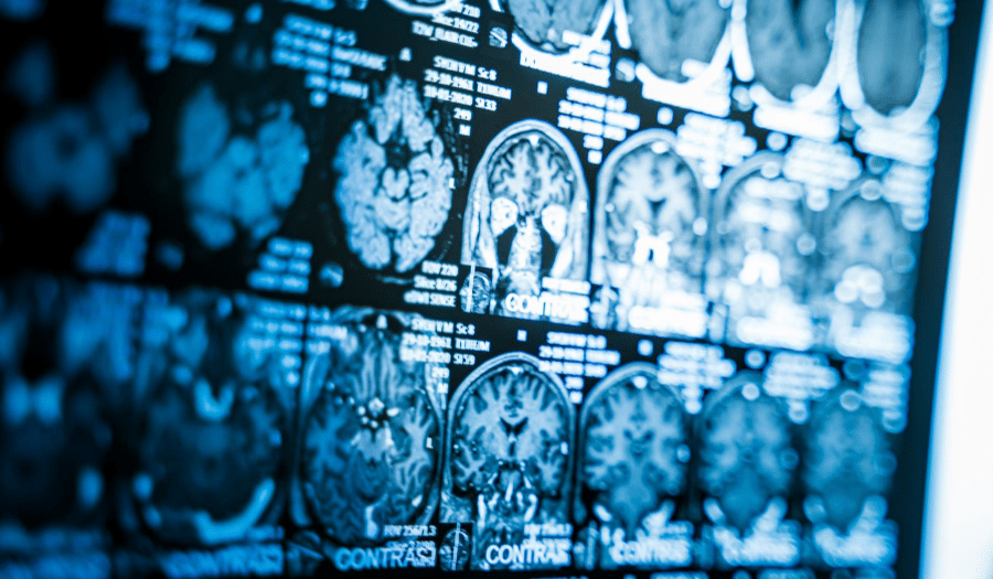 TBI brain scan traumatic brain injury